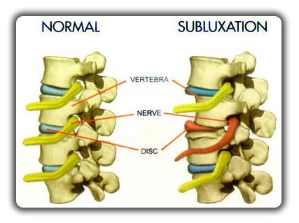 norma_vs_subluxation